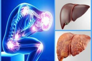 کبد چرب چیست - درمان کبد چرب - عوارض کبد چرب