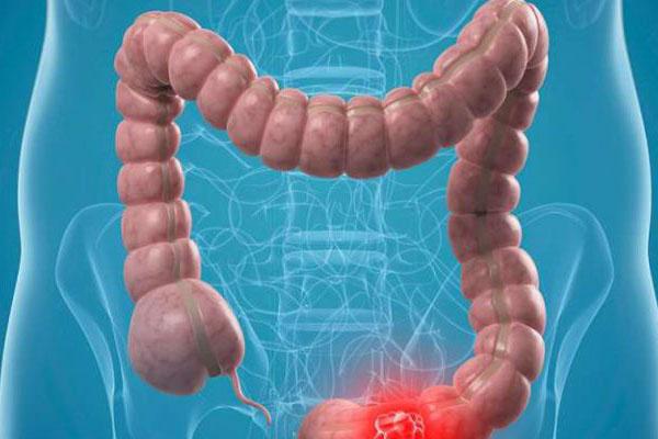 یبوست - علایم یبوست - علت یبوست - درمان یبوست