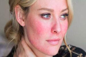 انواع بیماری پوستی - اگزما - کهیر - برص - آکنه
